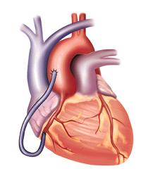 Cardio Cure Capsule