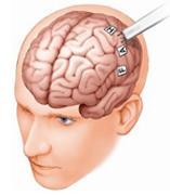 Epilepsy Capsule